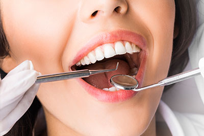 Periodontal Surgery Short Hills