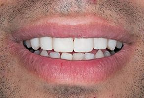 Short Hills Before and After Veneers